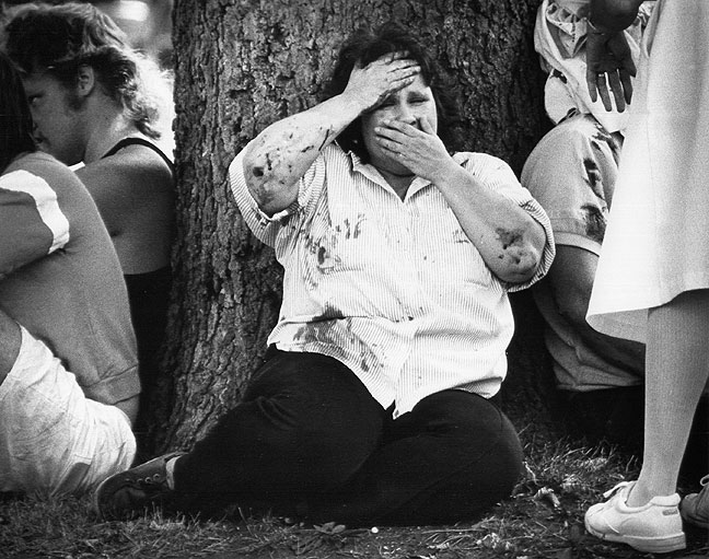 A woman tries to contain herself after an injury accident, 1988
