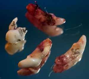 The vet took out these four tiny incisors from Max the Chihuahua.